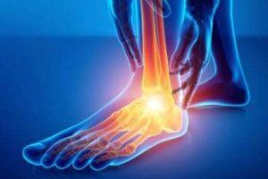 آرتروز و ساییدگی مفصل مچ پا