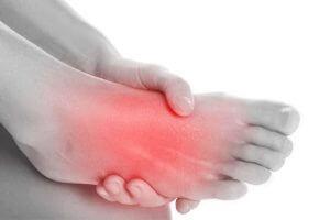 استخوان ناویکولر اضافه در کف پا